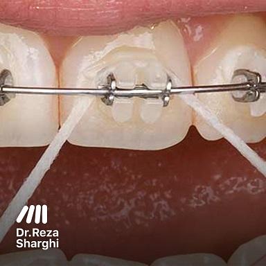 متخصص ارتودنسی: نخ دندان ارتودنسی