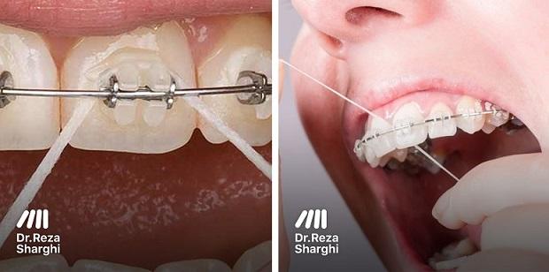 نخ_دندان