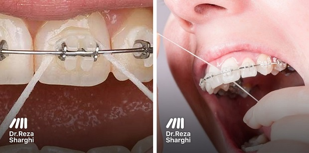 نخ دندان ارتودنسی