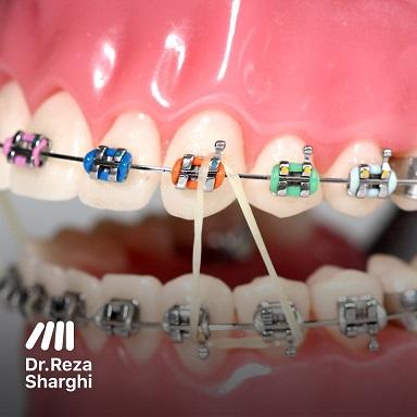 بهترین دندانپزشک: ارتودنسی، الاستیک ارتودنسی