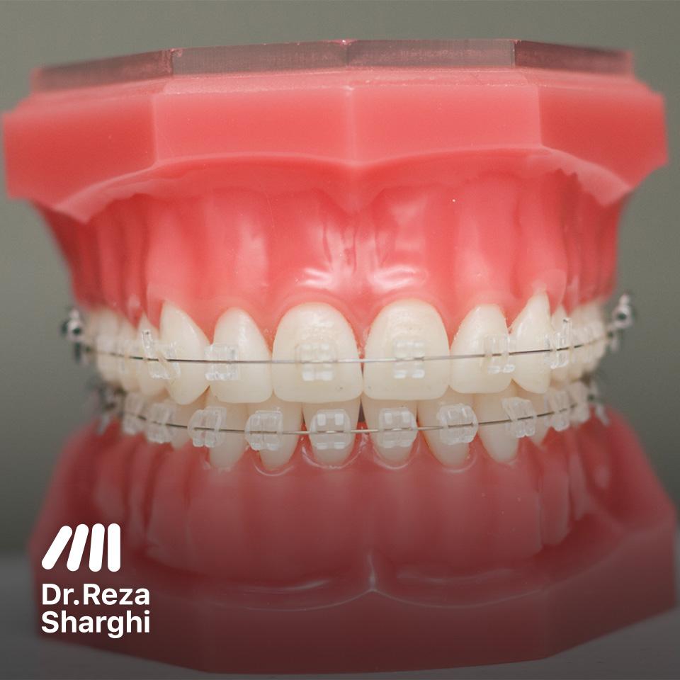 ارتودنسی رنگ دندانی سرامیکی