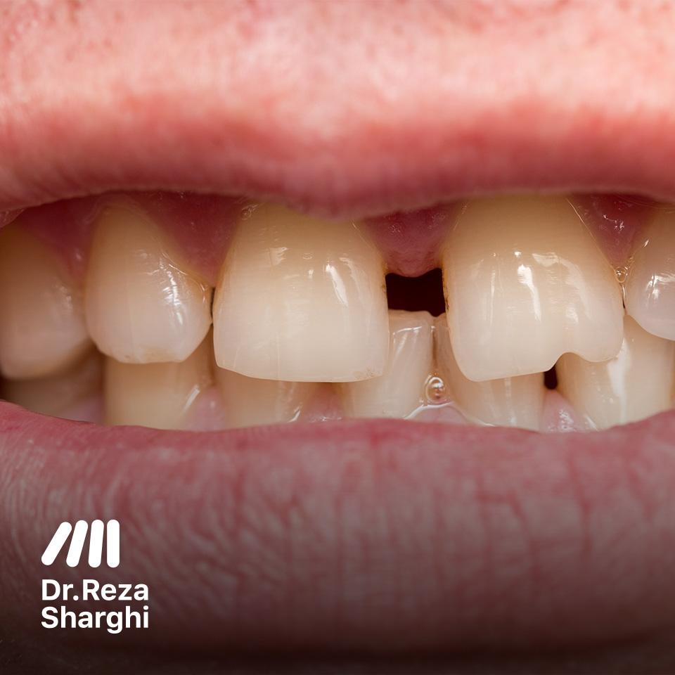 دندانهای کج