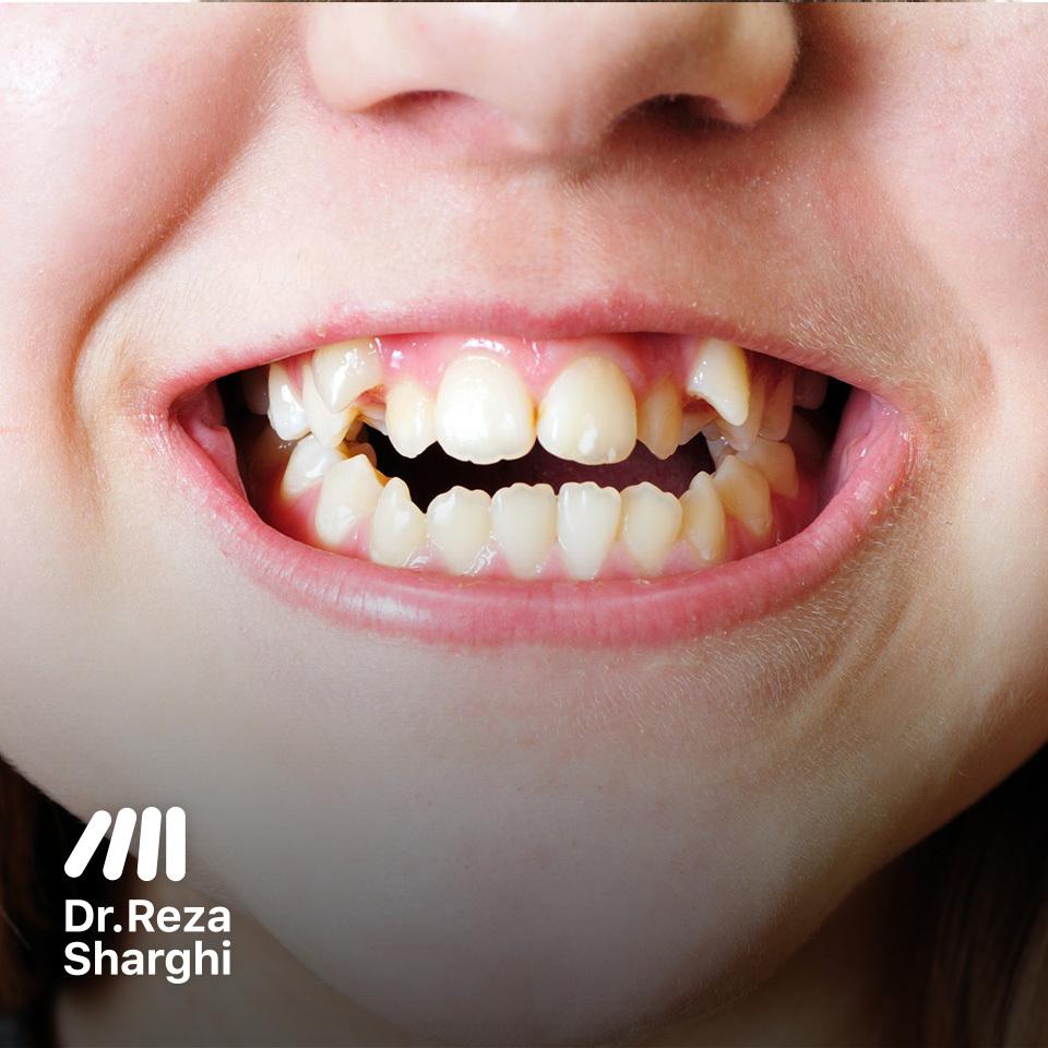 دندانهای کودکان