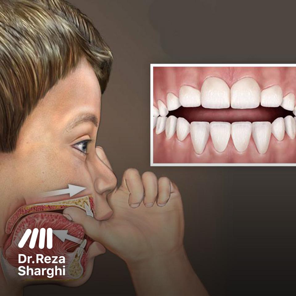 تاثیر مکیدن انگشت روی دندان