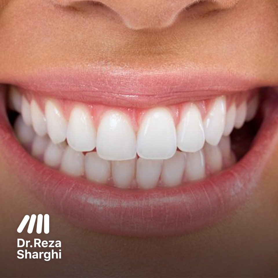 سفید کردن دندانها