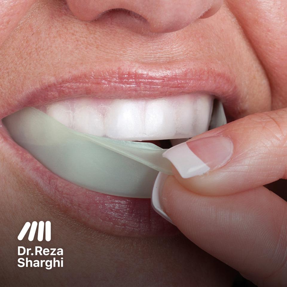 محافظ دندان