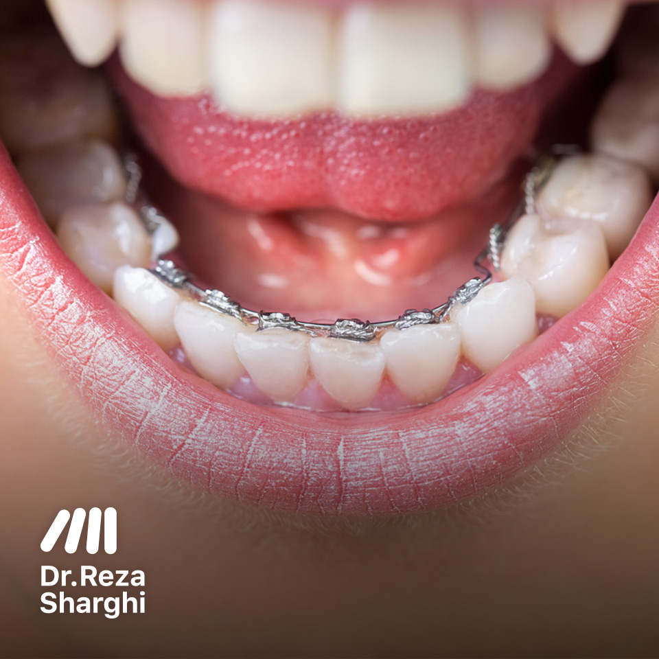 ارتودنسی لینگوال دندانهای پایین