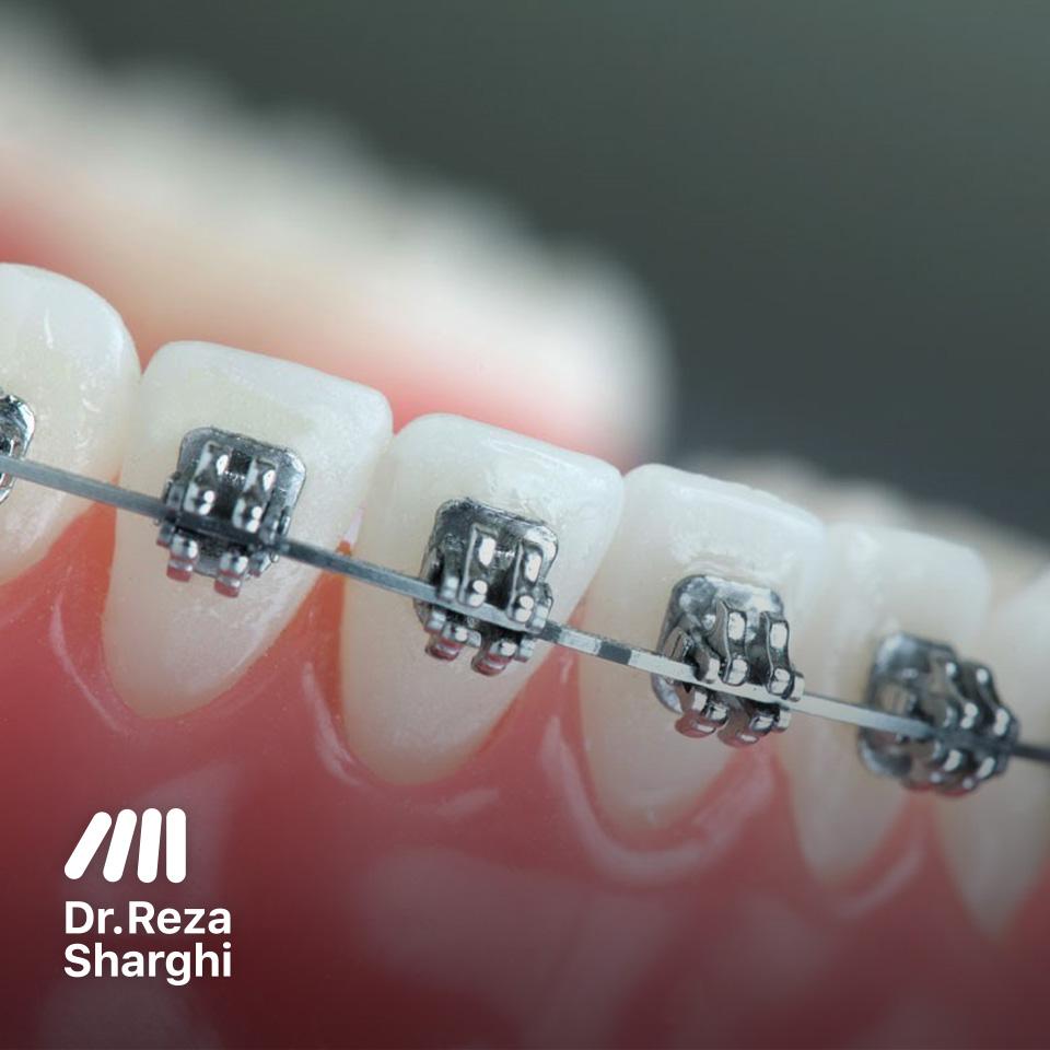 ارتودنسی دندانهای پایین
