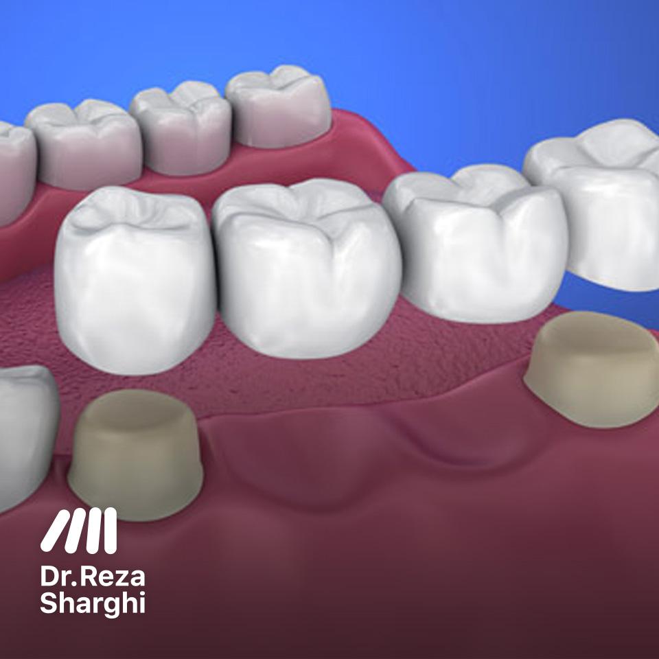 ترمیم دندان و ارتودنسی