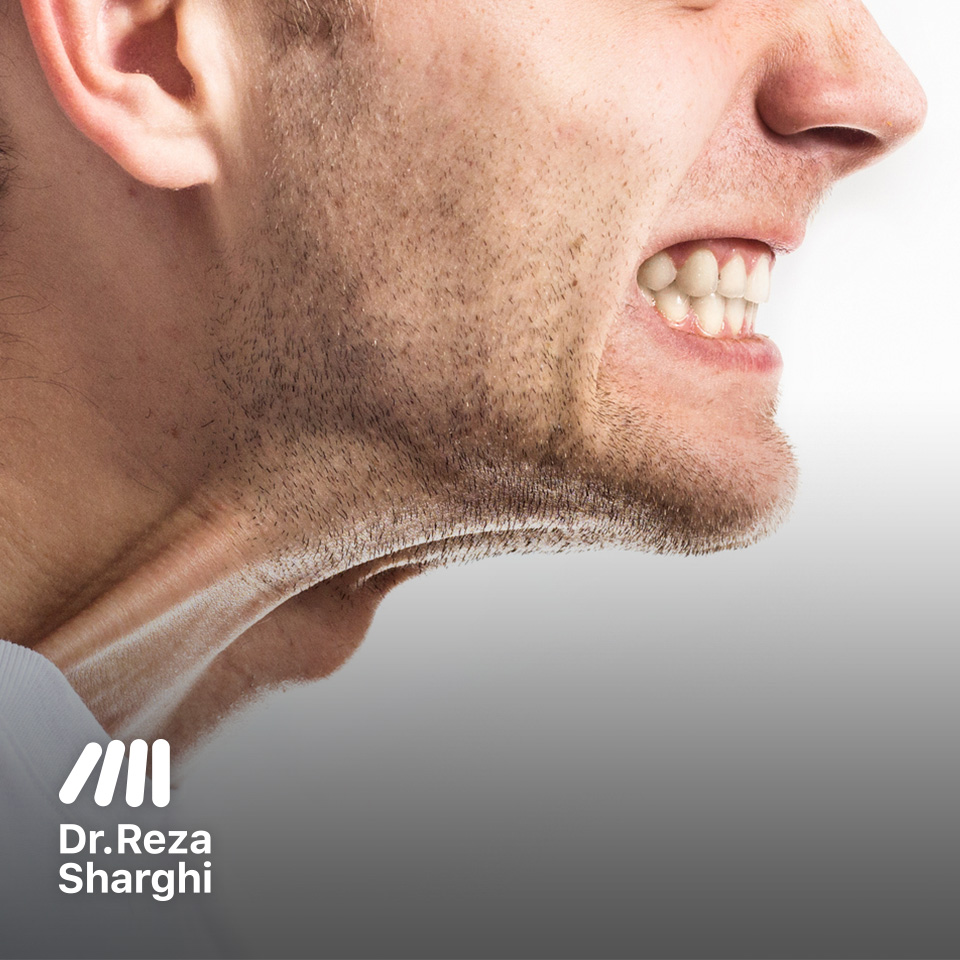 عادتهای بد دندان