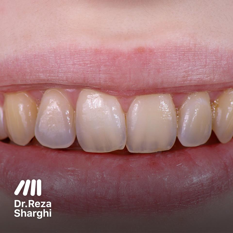 سایش مینای دندان
