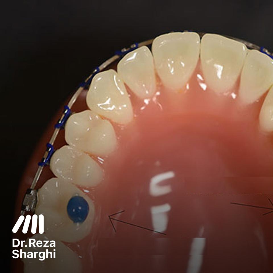 دندانپزشک تبریز: بایت رایزر