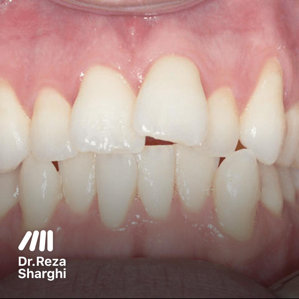 شلوغی و ازدحام دندانها