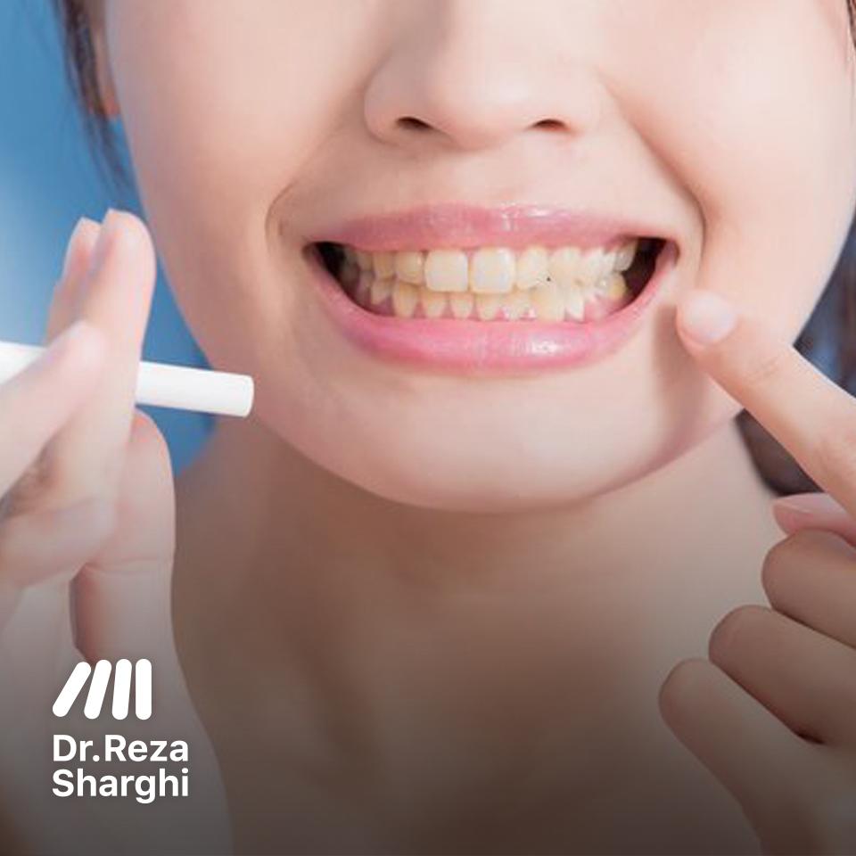 سیگار و تاثیرات منفی آن روی ارتودنسی