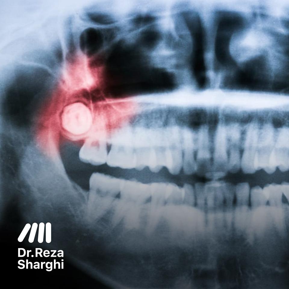نهفتگی دندان و درمان آن